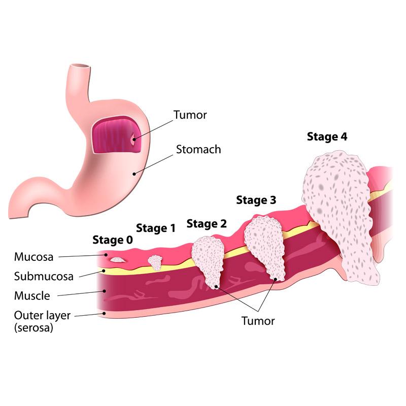 Partial Gastrectomy Stomach Cancer Treatments Huntsville AL