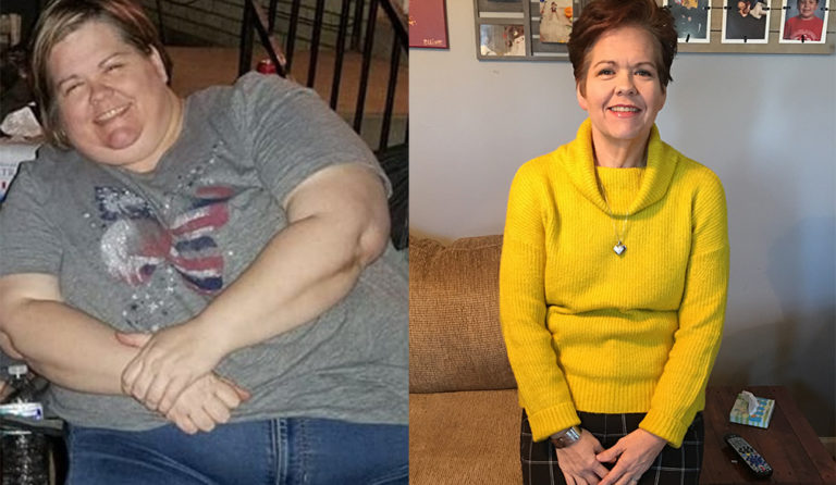 Shannon's weight loss transformation