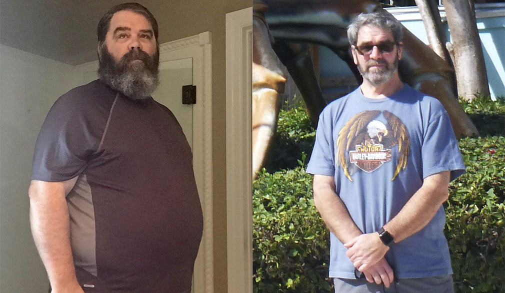 Rob's weight loss transformation