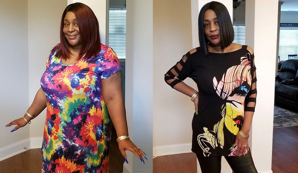 Dawn's weight loss transformation
