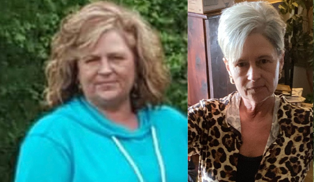 Renae's weight loss transformation